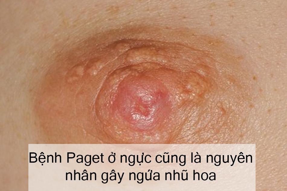 Bệnh Paget ở ngực cũng là nguyên nhân gây ngứa nhũ hoa