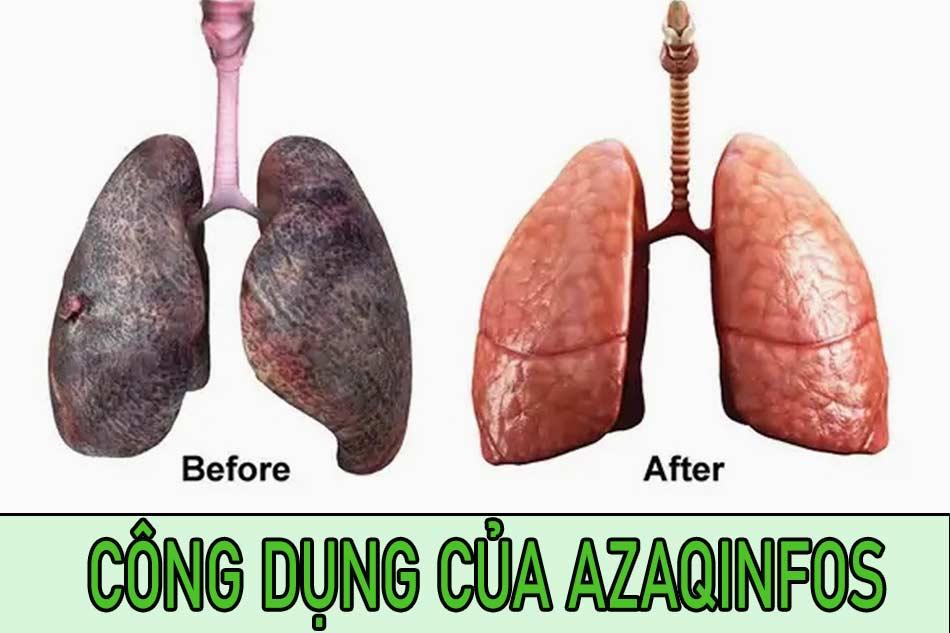 Công dụng của Azaqinfos