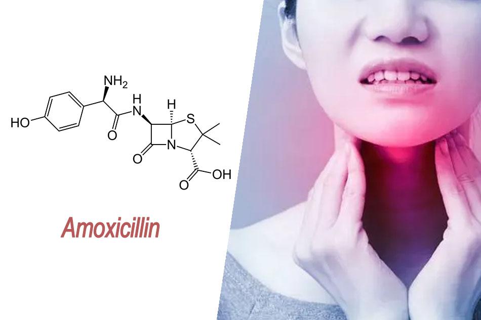 Amoxicillin được chỉ định cho bệnh viêm họng cấp