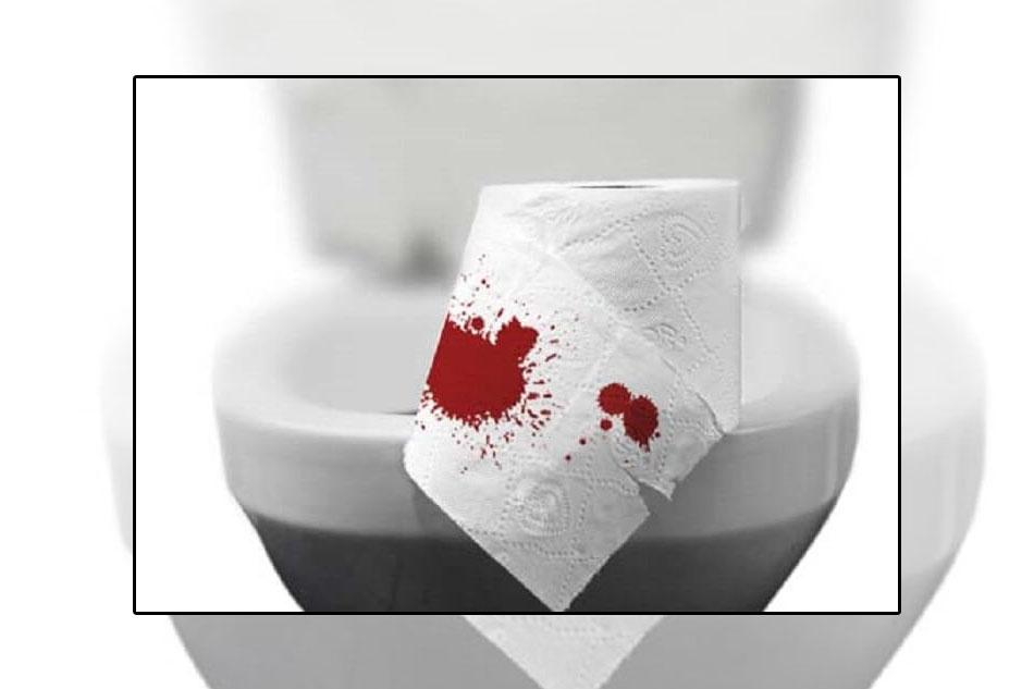 Chảy máu là một triệu chứng có bệnh trĩ