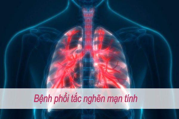 Bệnh phổi tắc nghẽn mạn tính