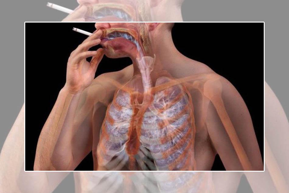 Hút thuốc lá nhiều có thể bị bệnh phổi tắc nghẽn mạn tính