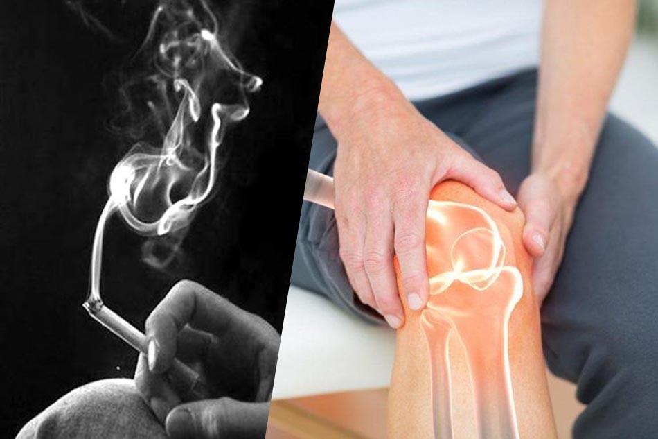 Hút thuốc lá gây loãng xương