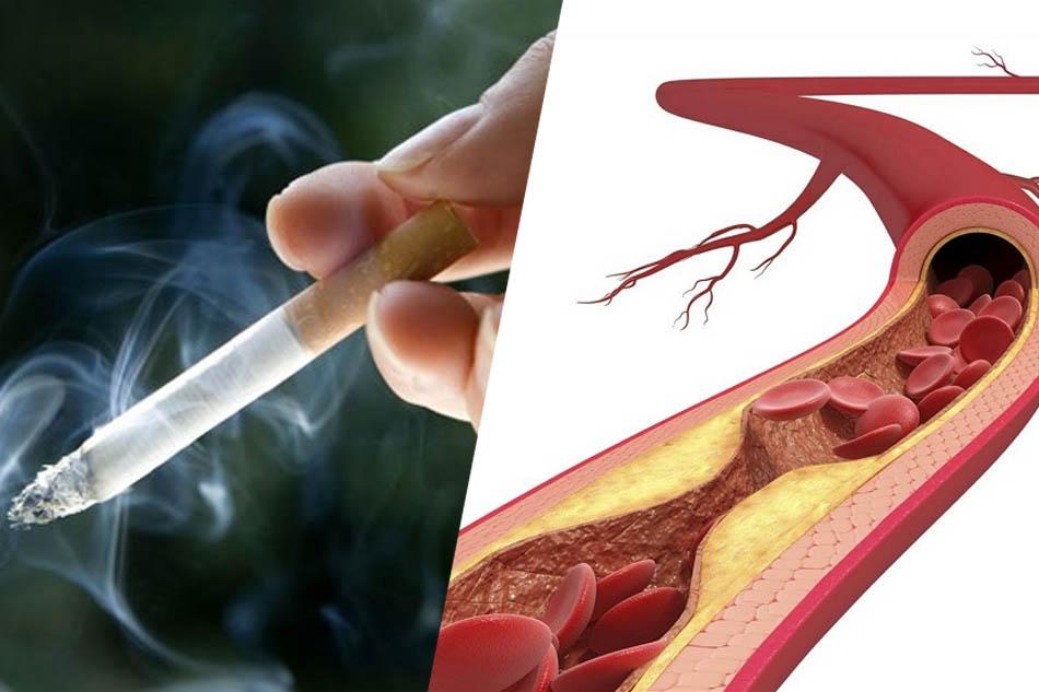 Hút thuốc lá gây xơ vữa động mạch