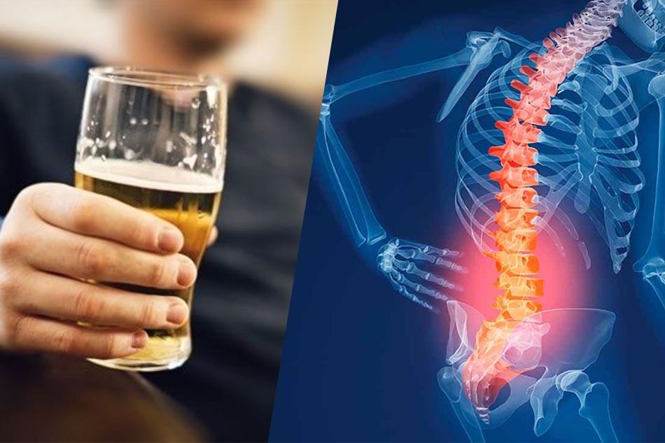 Lạm dụng bia rượu có thể gây loãng xương