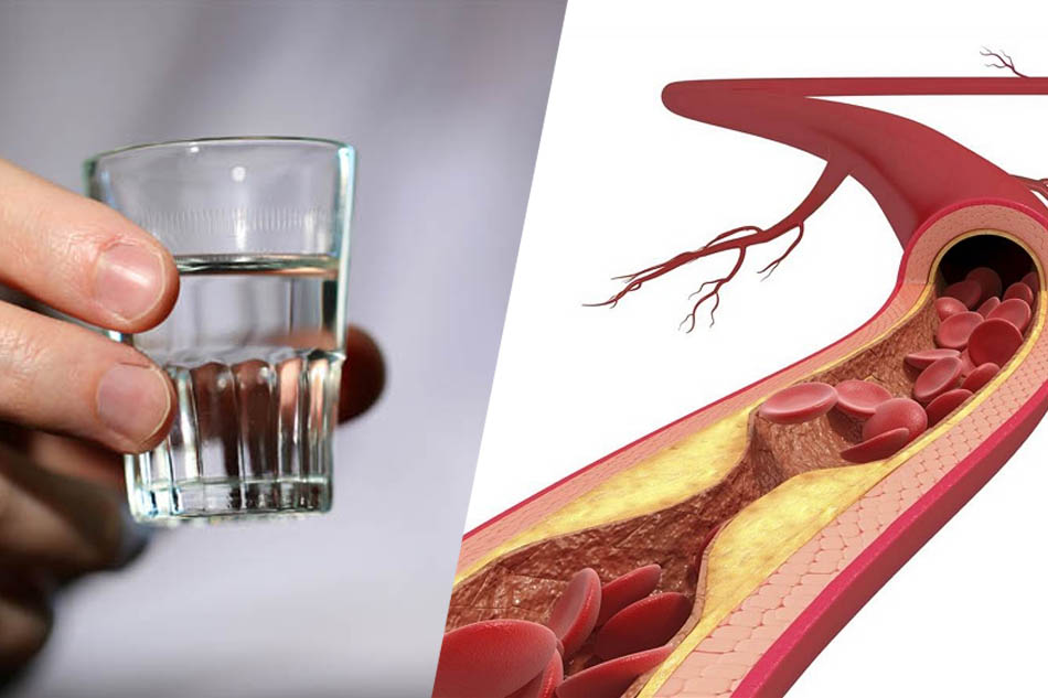 Uống rượu nhiều có thể gây xơ vữa động mạch